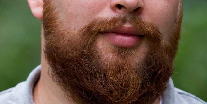 De baard van Lars