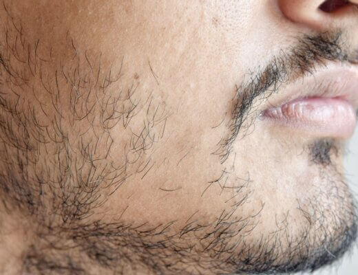 Kale plekken in baard